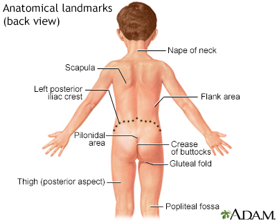 flank pain | university of iowa children's hospital, Skeleton