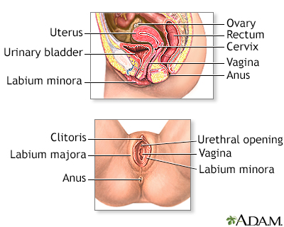 Vaginal cysts | University of Iowa Stead Family Children's ...