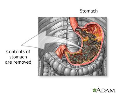 Как прочистить желудок в домашних условиях и кишечник 746