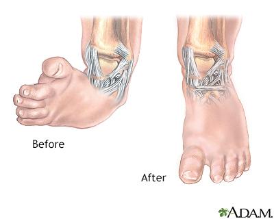 Club foot deformity